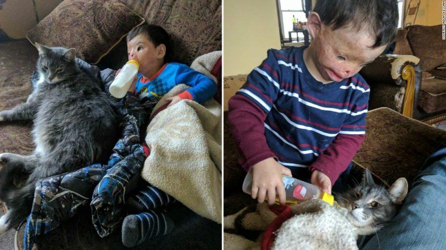 Injured child's family's visas revoked