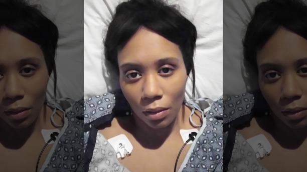 Foreign Accent Syndrome plagues woman